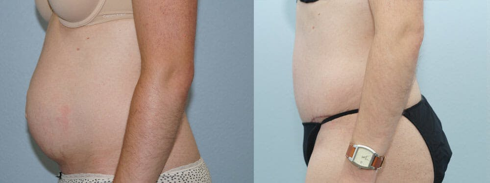 Tummy Tuck Gallery - Patient 49151505 - Image 2