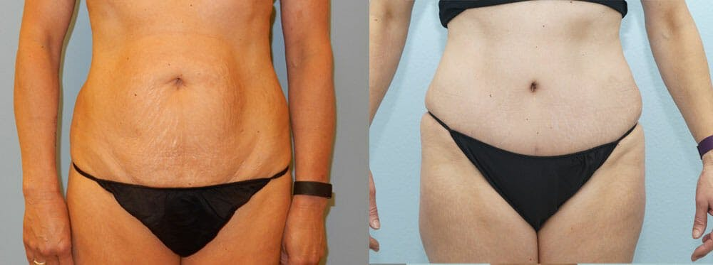Tummy Tuck Gallery - Patient 49151506 - Image 1