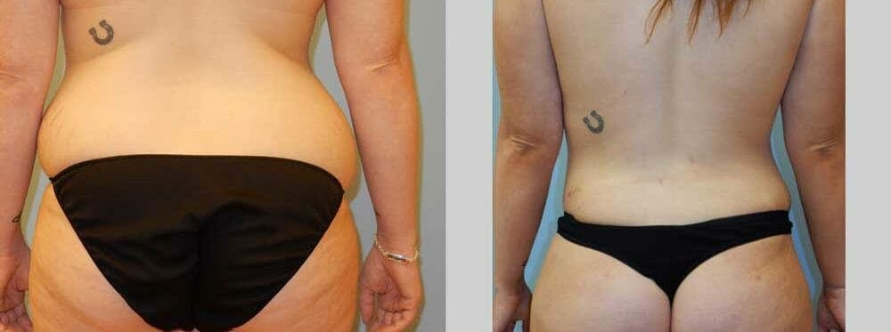 Tummy Tuck Gallery - Patient 49151507 - Image 2