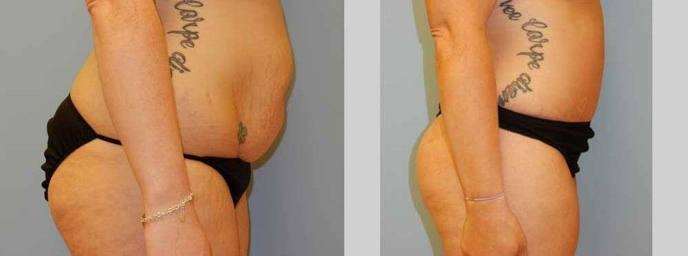 Tummy Tuck Gallery - Patient 49151507 - Image 3