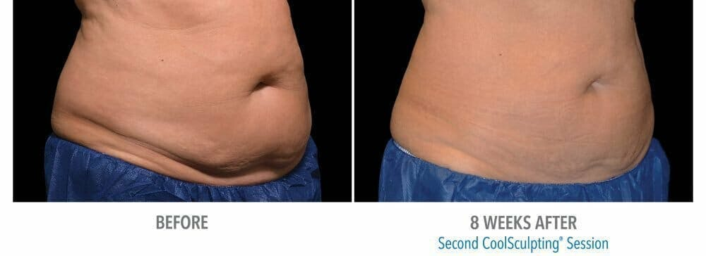 Coolsculpting Gallery - Patient 47432458 - Image 1