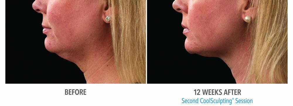 Coolsculpting Gallery - Patient 47432459 - Image 1