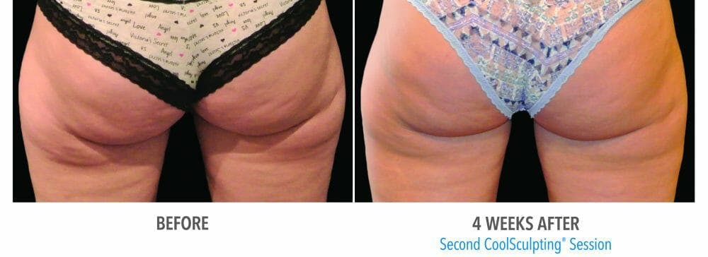 Coolsculpting Gallery - Patient 47432461 - Image 1