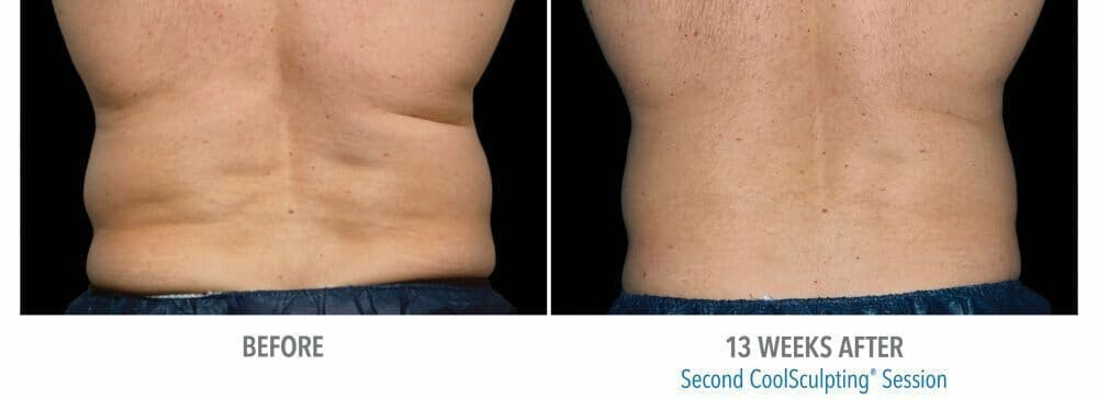 Coolsculpting Gallery - Patient 47432467 - Image 1