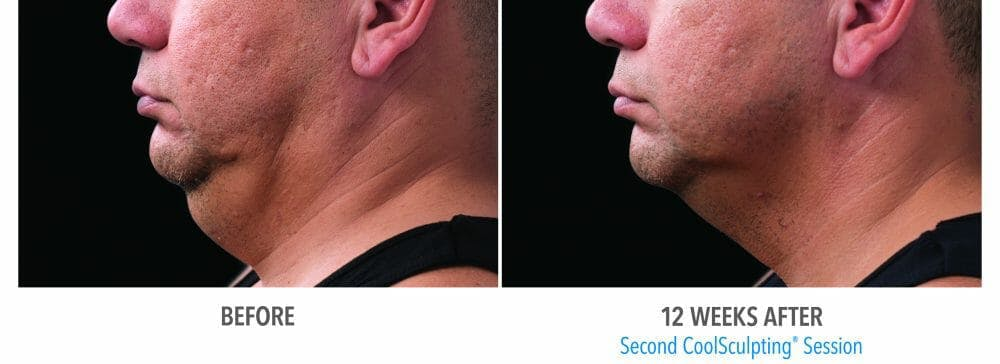 Coolsculpting Gallery - Patient 47432468 - Image 1