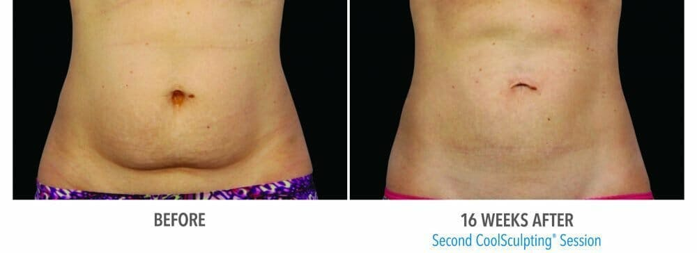 Coolsculpting Gallery - Patient 47432470 - Image 1