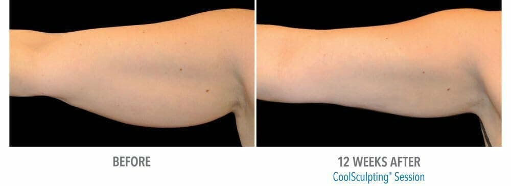 Coolsculpting Gallery - Patient 47432493 - Image 1