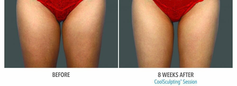 Coolsculpting Gallery - Patient 47432506 - Image 1