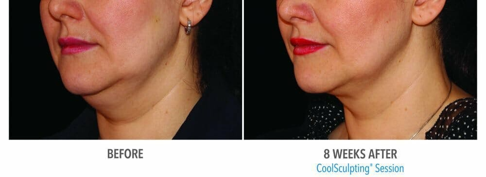 Coolsculpting Gallery - Patient 47432524 - Image 1
