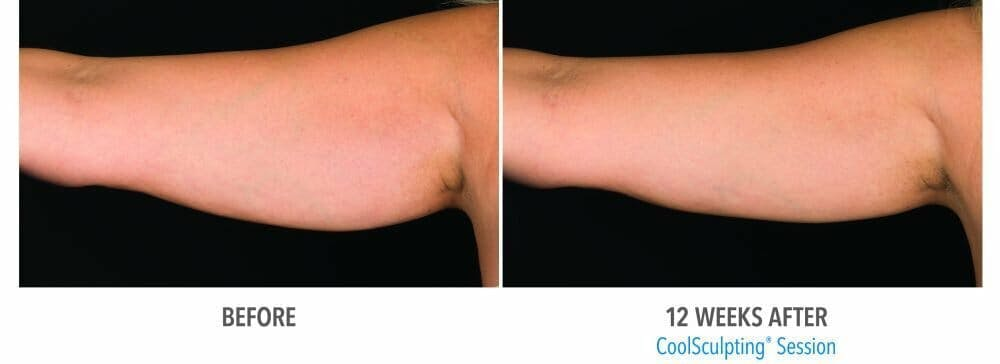 Coolsculpting Gallery - Patient 47432532 - Image 1