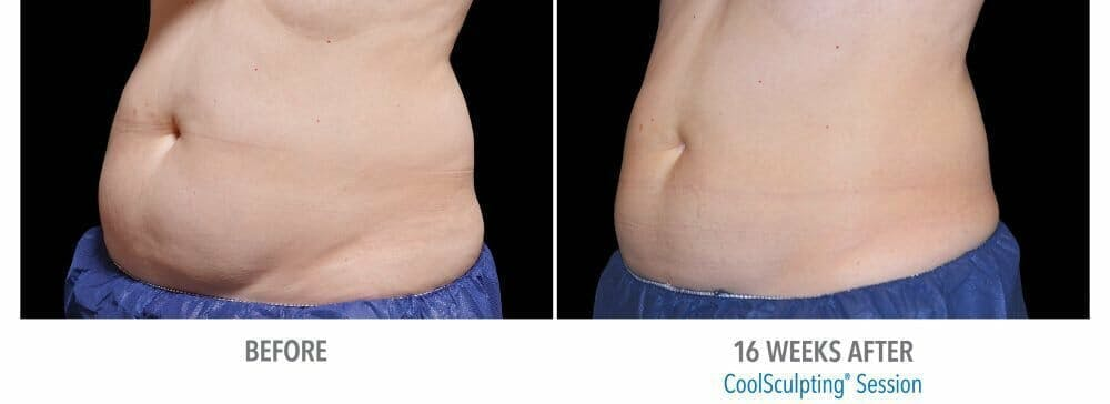 Coolsculpting Gallery - Patient 47432543 - Image 1
