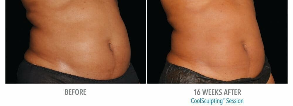 Coolsculpting Gallery - Patient 47432566 - Image 1