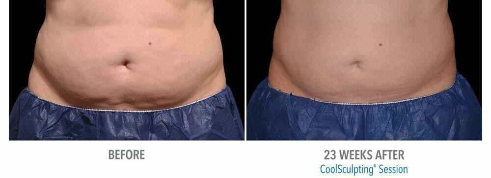 Coolsculpting Gallery - Patient 47432582 - Image 1