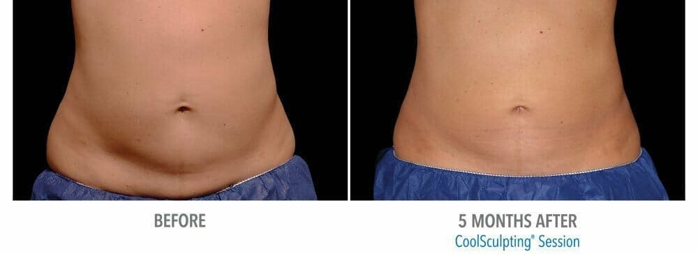 Coolsculpting Gallery - Patient 47432588 - Image 1