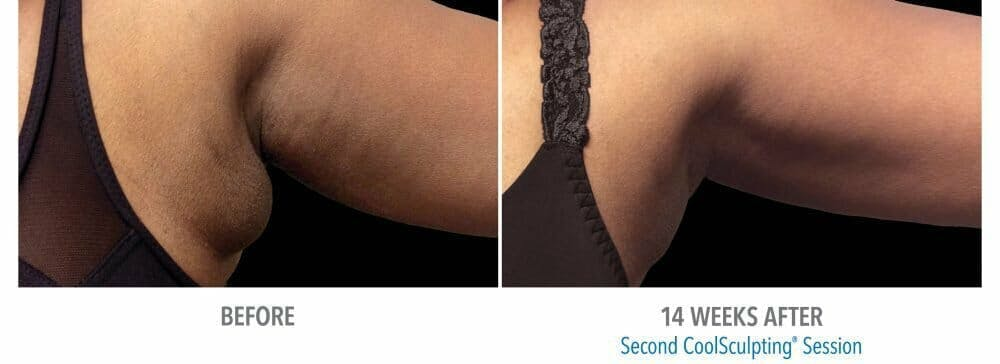 Coolsculpting Gallery - Patient 47432589 - Image 1