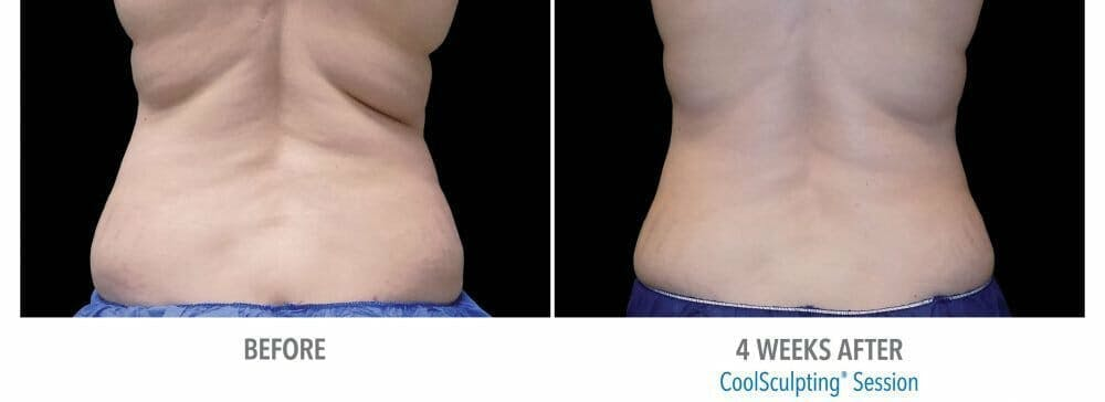 Coolsculpting Gallery - Patient 47432596 - Image 1