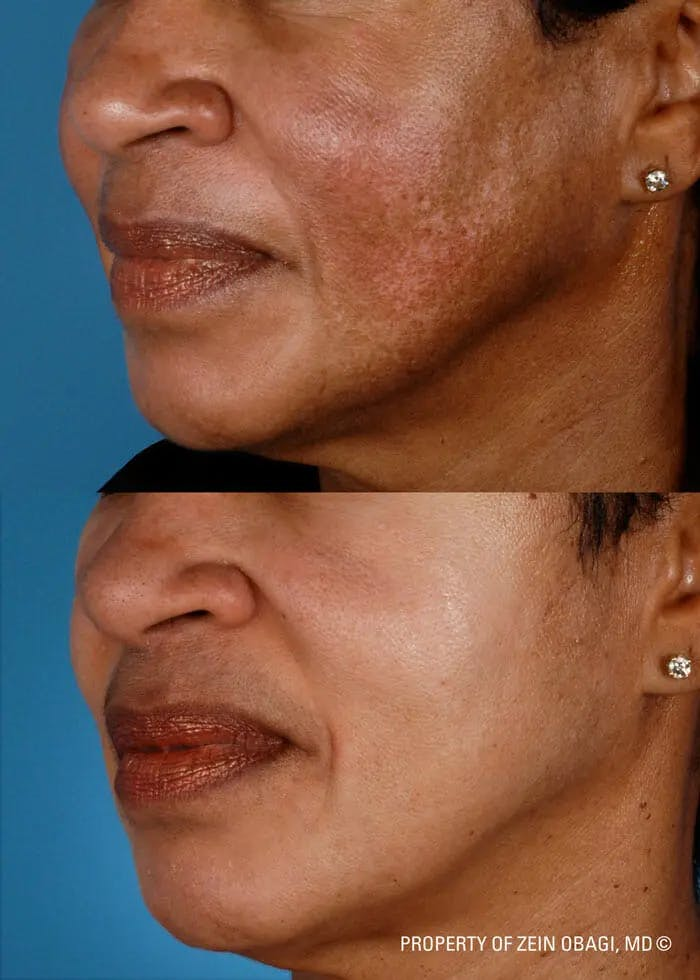 Skin Care Gallery - Patient 49268456 - Image 1