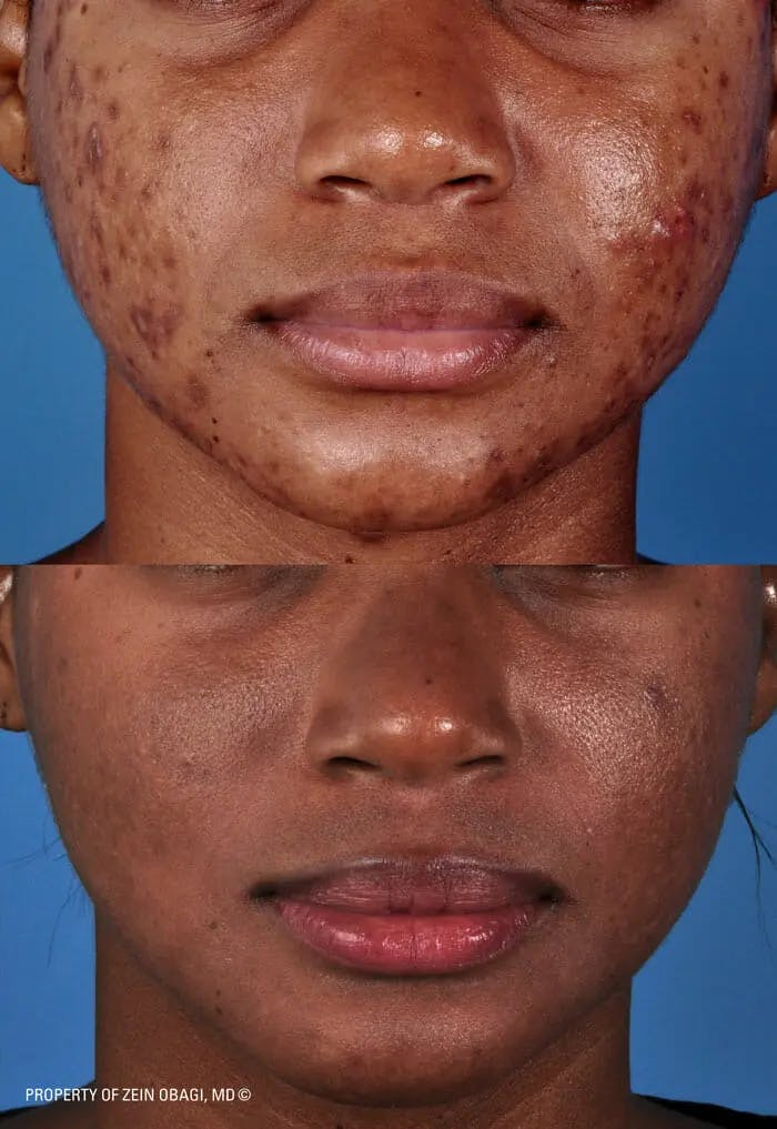 Skin Care Gallery - Patient 49268457 - Image 1