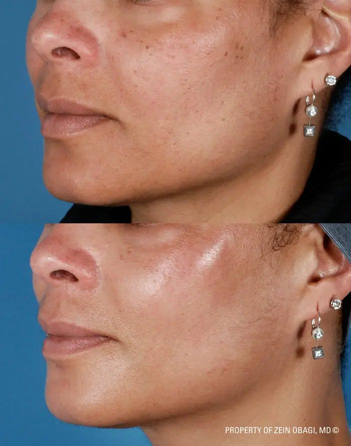 Skin Care Gallery - Patient 49268458 - Image 1