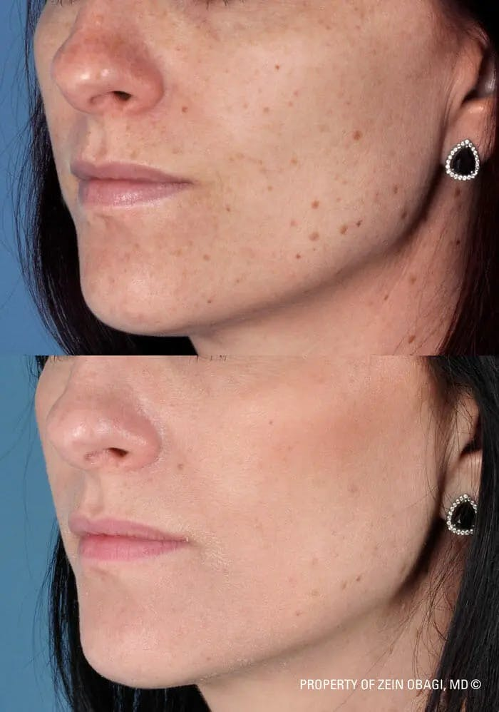 Skin Care Gallery - Patient 49268459 - Image 1