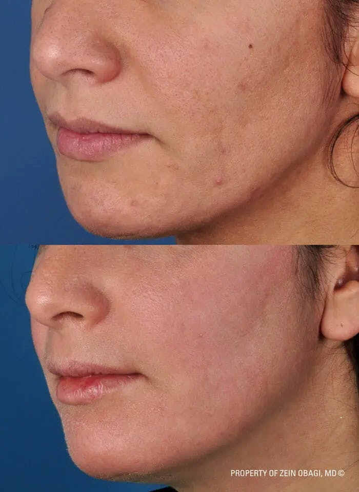 Skin Care Gallery - Patient 49268460 - Image 1