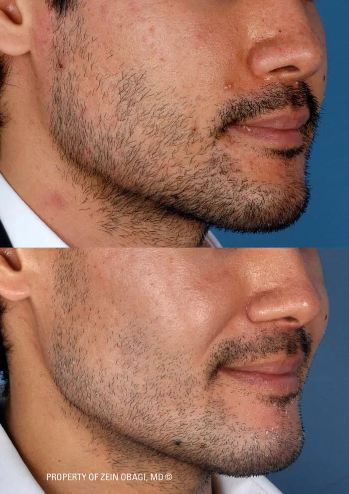 Skin Care Gallery - Patient 49268461 - Image 1