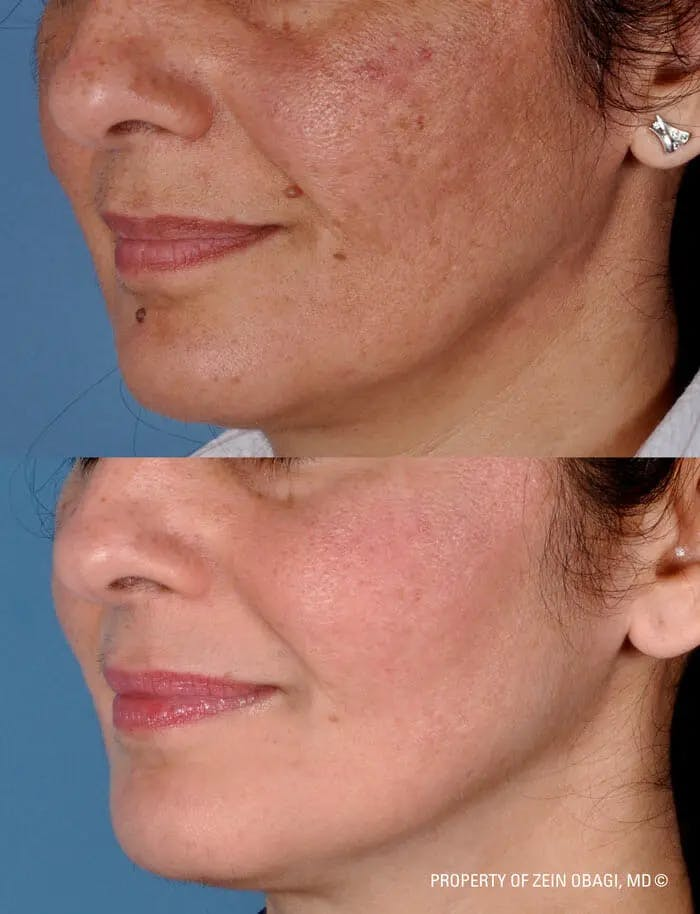 Skin Care Gallery - Patient 49268462 - Image 1