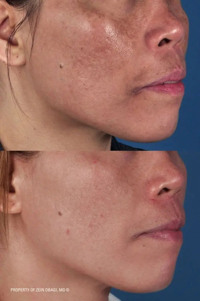 Skin Care Gallery - Patient 49268463 - Image 1