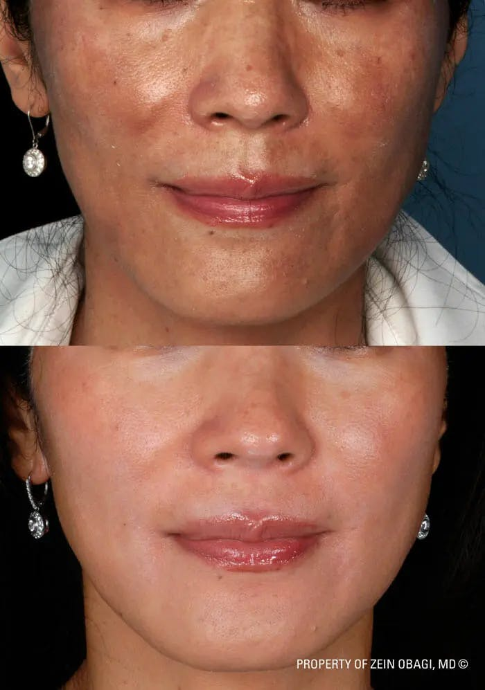 Skin Care Gallery - Patient 49268464 - Image 1