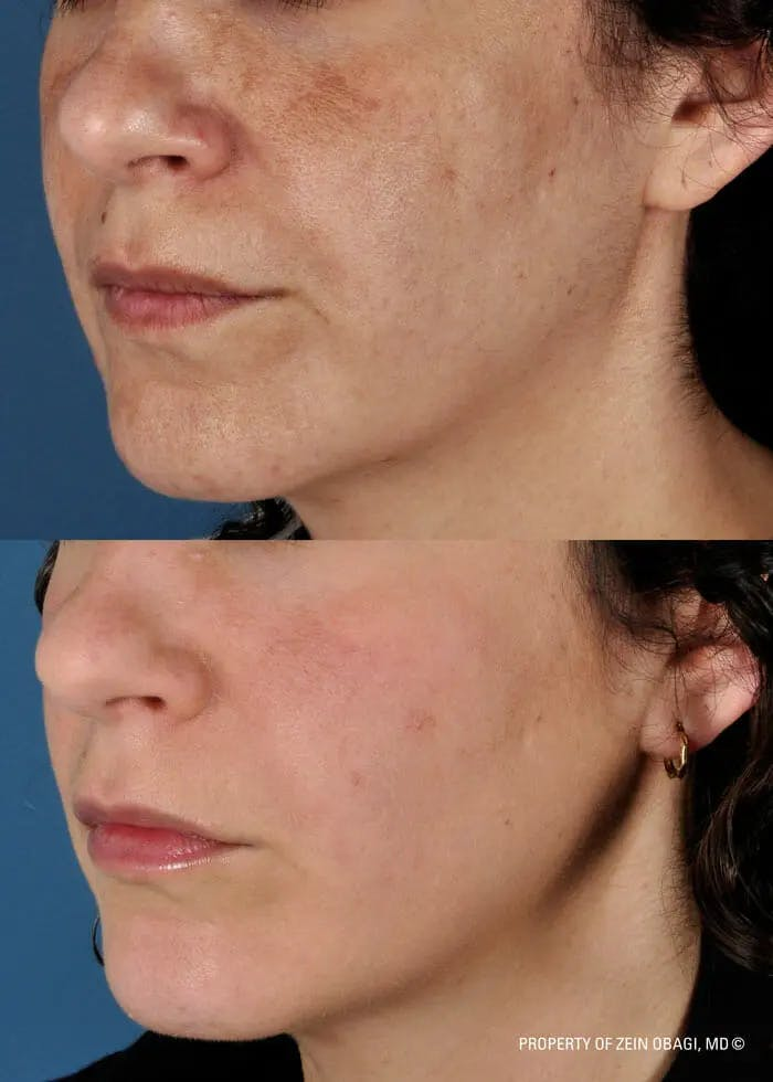 Skin Care Gallery - Patient 49268465 - Image 1