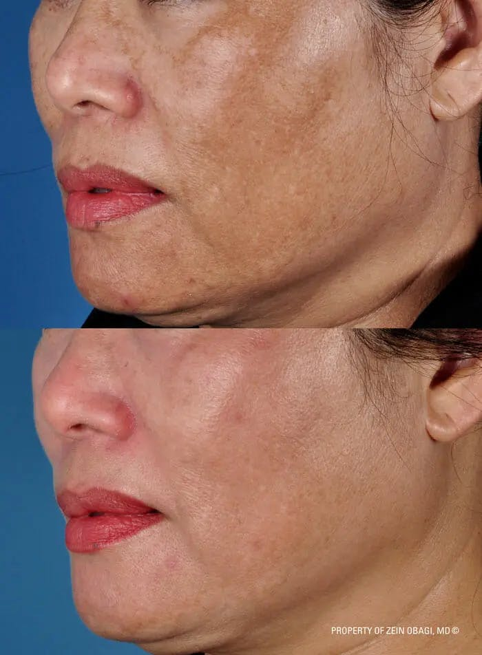 Skin Care Gallery - Patient 49268466 - Image 1
