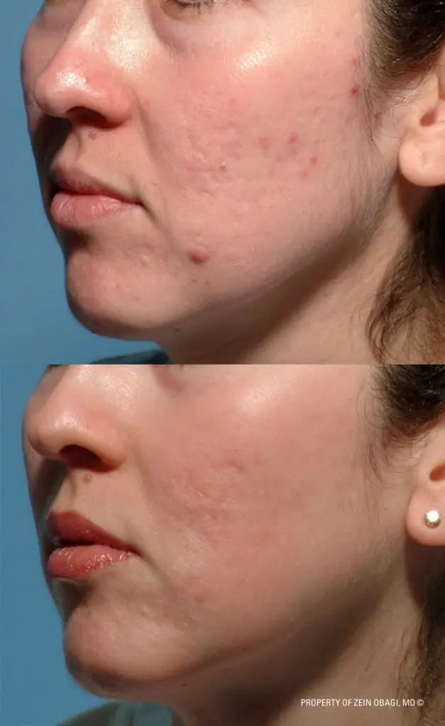 Skin Care Gallery - Patient 49268467 - Image 1