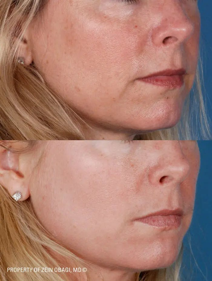 Skin Care Gallery - Patient 49268468 - Image 1