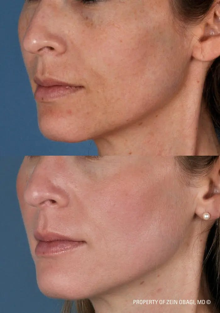 Skin Care Gallery - Patient 49268469 - Image 1