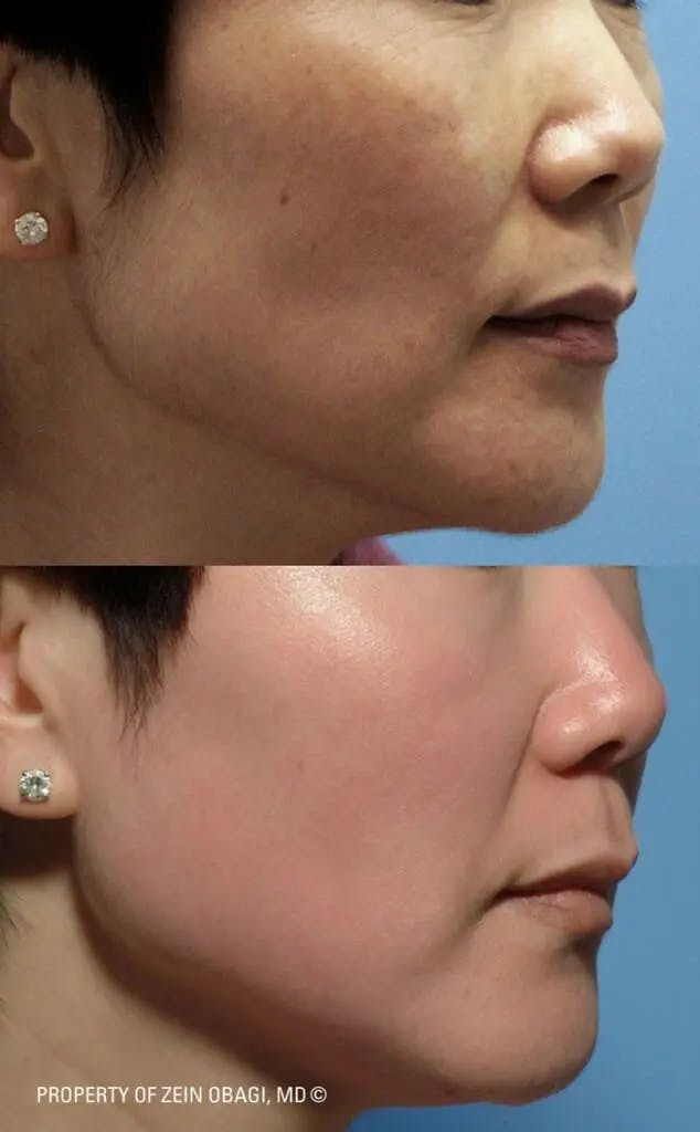 Skin Care Gallery - Patient 49268470 - Image 1