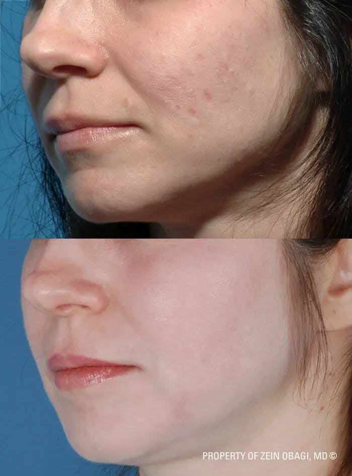 Skin Care Gallery - Patient 49268471 - Image 1