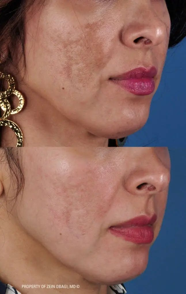 Skin Care Gallery - Patient 49268472 - Image 1