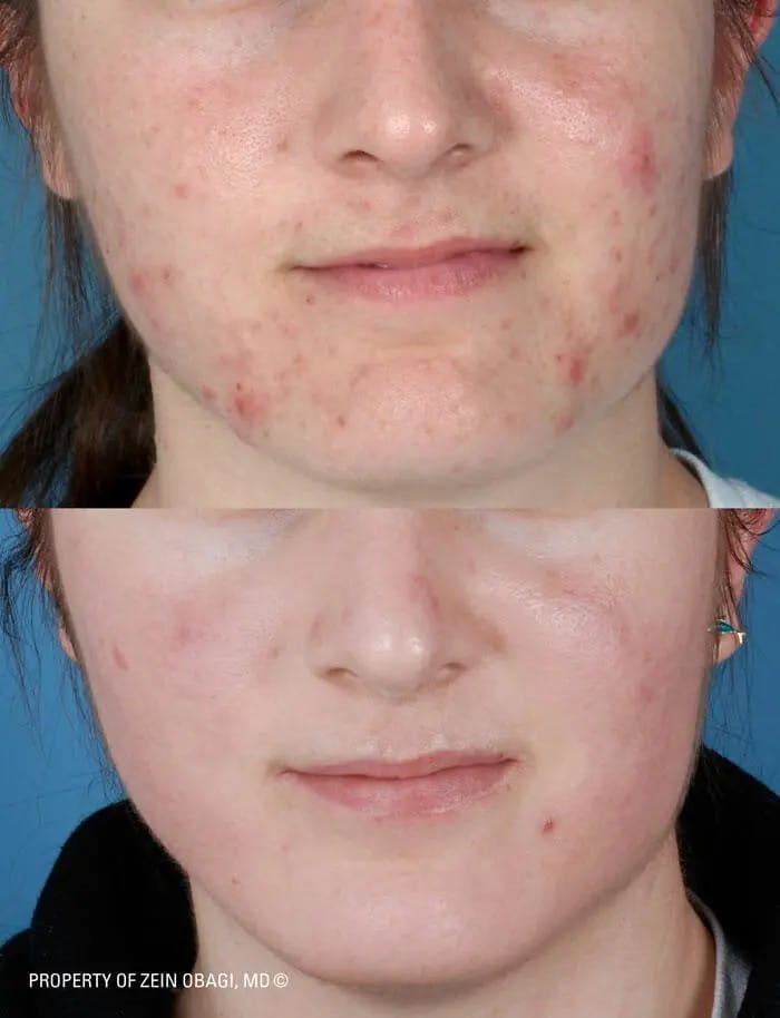 Skin Care Gallery - Patient 49268473 - Image 1