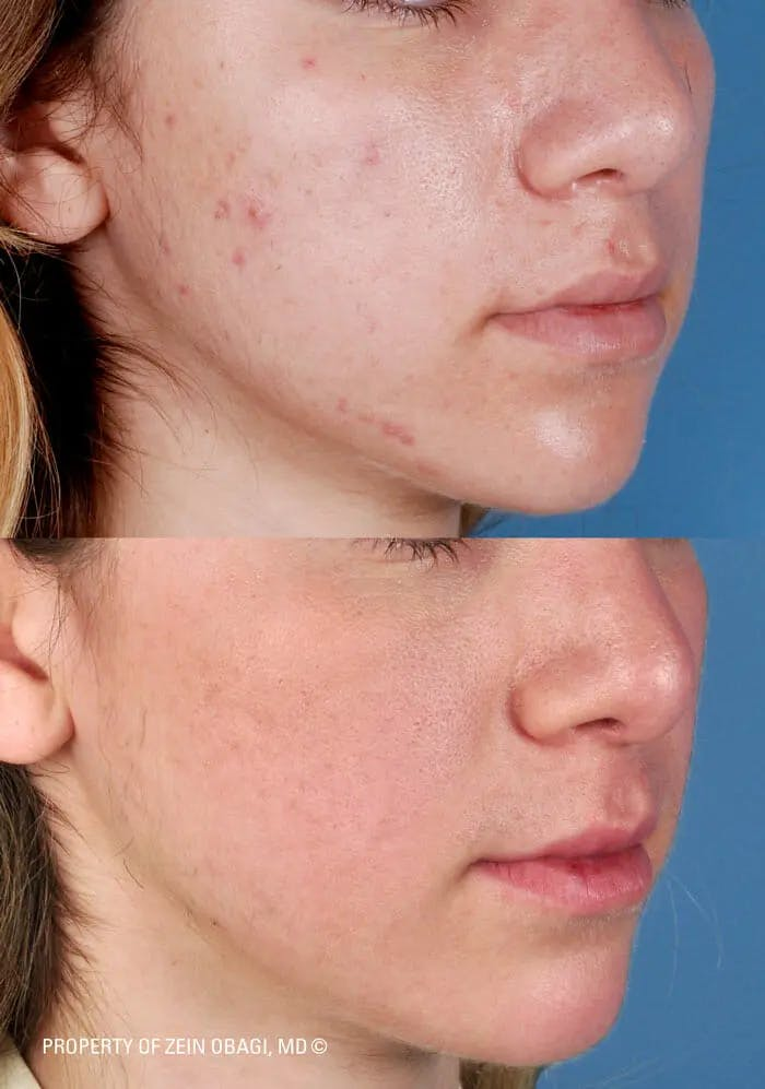 Skin Care Gallery - Patient 49268474 - Image 1