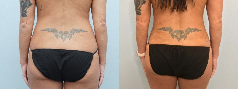 Tummy Tuck Gallery - Patient 49627734 - Image 2