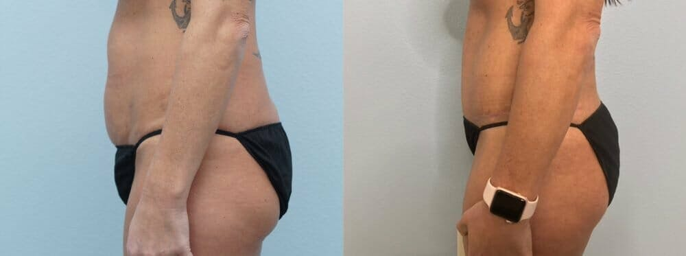 Tummy Tuck Gallery - Patient 49627734 - Image 4