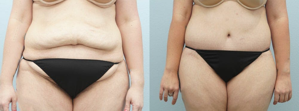 Body Lift Gallery - Patient 49632090 - Image 1