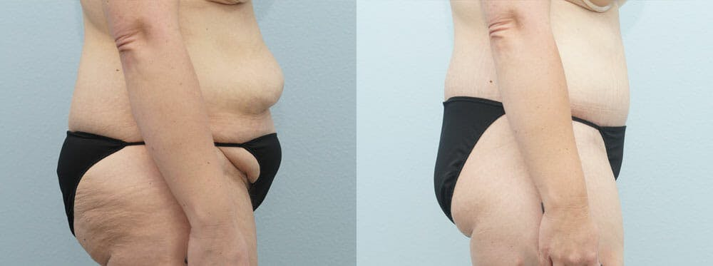 Body Lift Gallery - Patient 49632090 - Image 4