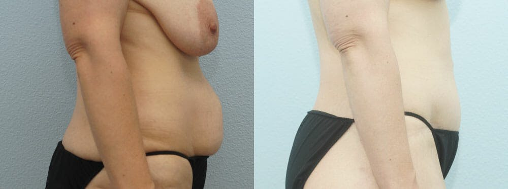 Body Lift Gallery - Patient 49632096 - Image 3