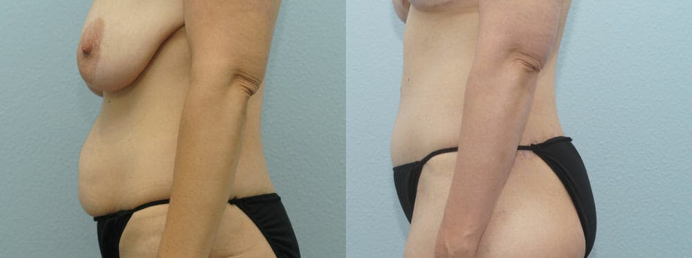 Body Lift Gallery - Patient 49632096 - Image 4