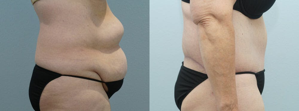 Body Lift Gallery - Patient 49632128 - Image 3