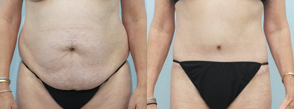 Body Lift Gallery - Patient 49632137 - Image 1