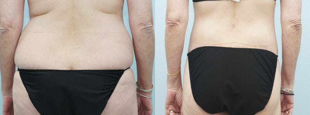 Body Lift Gallery - Patient 49632137 - Image 2