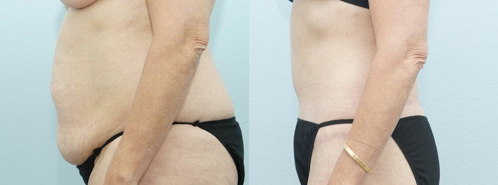 Body Lift Gallery - Patient 49632137 - Image 3