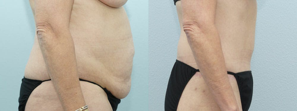 Body Lift Gallery - Patient 49632137 - Image 4